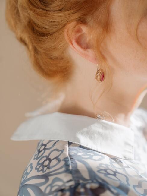 Zonnevlekken huid, jurk, oorbellen